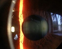 córnea iris y cristalico lampara de hendidura
