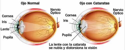 Catarata1