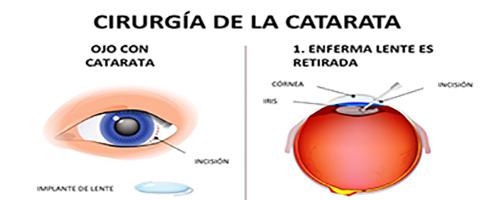 Catarata_Cirurgia