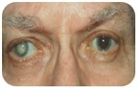 ojos con catarata