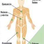 Cuadro clínico caracterizado por: aparición súbita de fiebre ,cansancio, dolores musculares y articulaciones,erupciones cutáneas, nauseas y vómitos