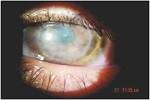 avastin-en-cornea