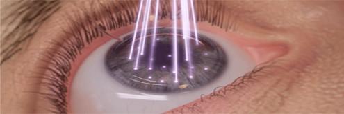 presbicia_monovision_avanzada_laser copia