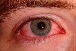 Superficie ocular- ojo rojo