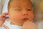 Conjuntivitis en Recién nacidos