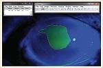 defecto epitelial mediante programa ImageJ