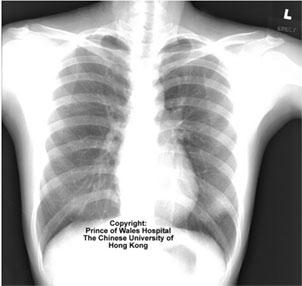 Infecciones Por Coronavirus Radiografia De Pulmon De Paciente Con Neumonia Atipica