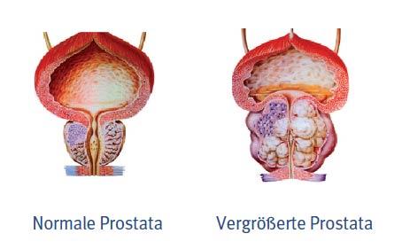 prostata_grafik2