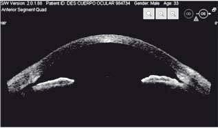 desprendimiento-del-cuerpo-ciliar