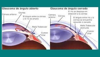 Glaucoma de ángulos abierto y cerrado