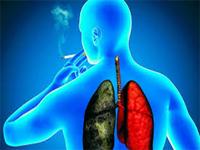Tabaquismo y Cáncer de Pulmón