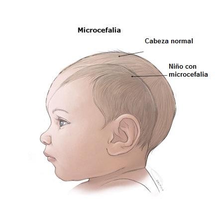 Microcefalia niño