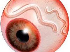 Oncocercosis o ceguera de los ríos