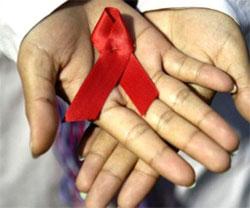 respuesta al sida