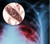 tuberculosis bacilo de Koch